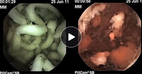 SHOCKING Video of Inside Your Stomach Showing What Happens After You Eat Instant Noodles!
