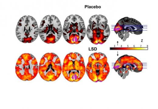First MRI Scans Revealing How LSD Affects Our Brain