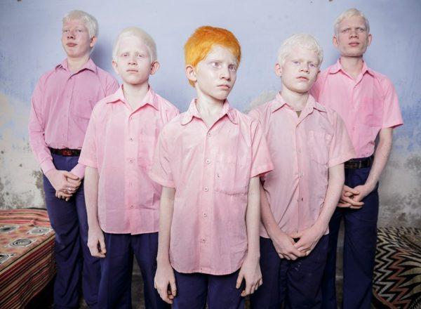 Blind albino boys.