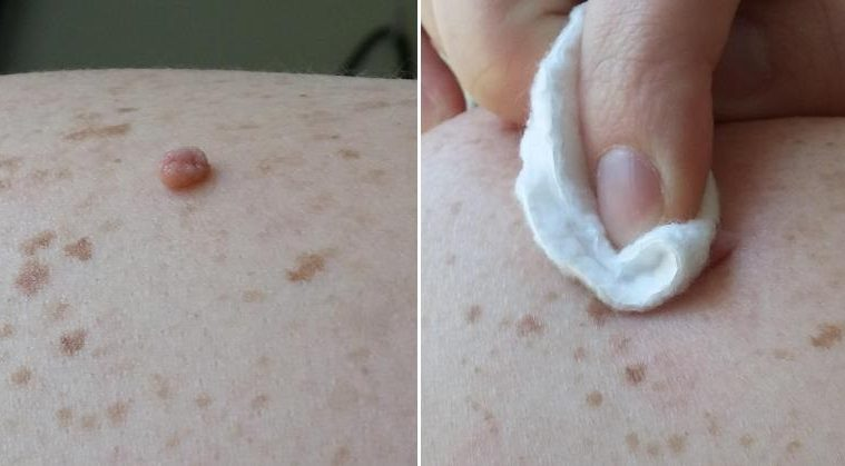 Rub THIS Natural Ingredient On Your Skin Tags And They Will Disappear In NO TIME!