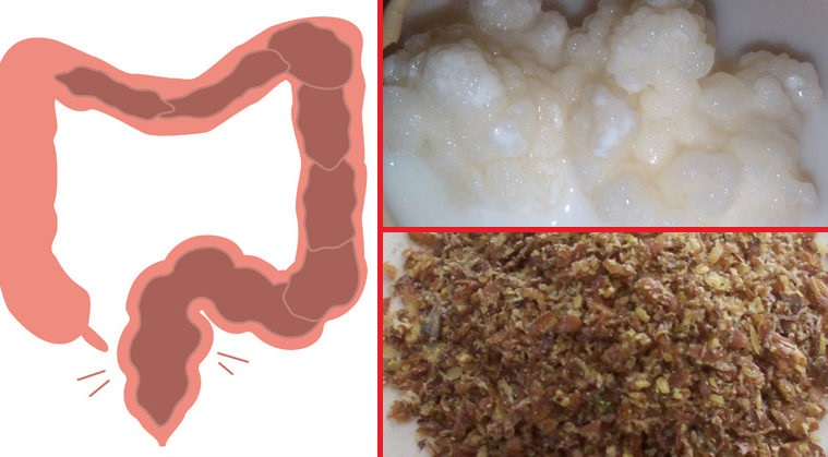 how-to-get-rid-of-toxins-in-your-intestines