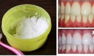 how-to-make-your-teeth-white