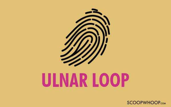 Ulnar Loop