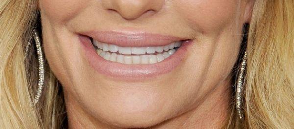 an-injected-fuller-upper-lip