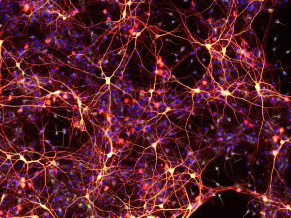 heart-neurons