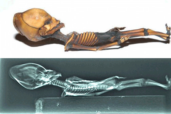 x-ray-the-atacama-alien