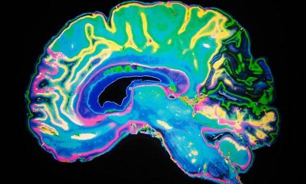 your-brain-has-anti-memories