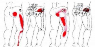 Sciatica Back Pain Remedy