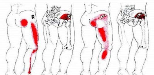 Боль в левой ягодице при остеохондрозе