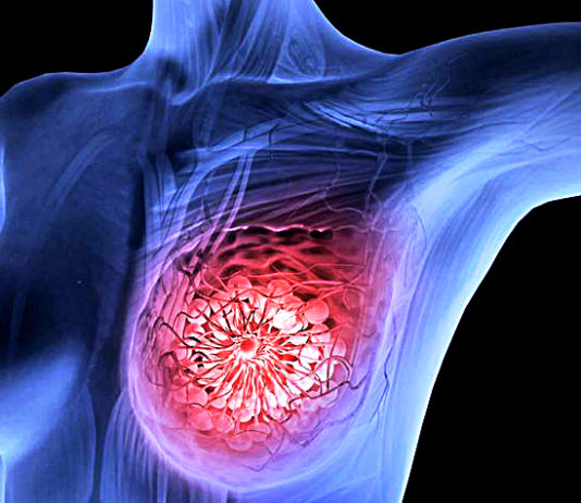 Scientists Amsterdam Destroyed Breast Cancer Tumors