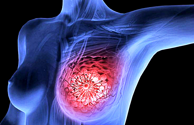 Inflamatory breast cancer survivors
