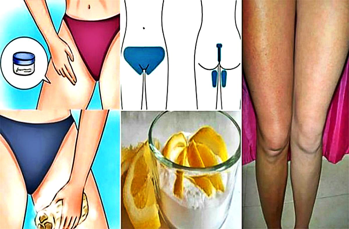 Как быстро отбелить кожу в интимных местах в домашних условиях