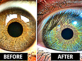 Eyes Changed Color After Eating Raw Vegan