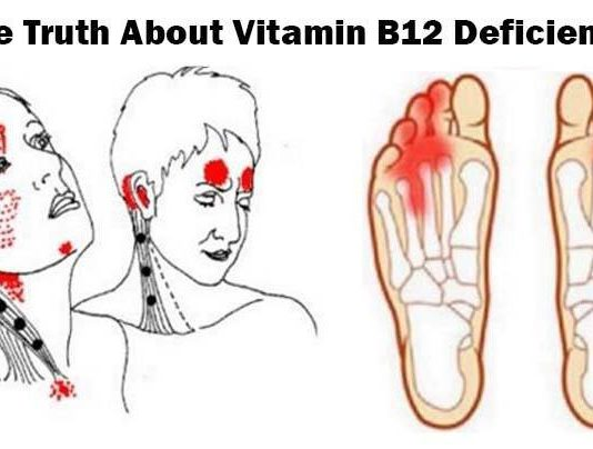 Truth About Vitamin B12 Deficiency