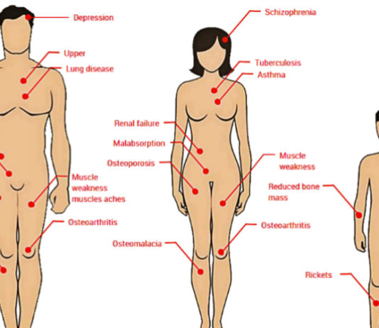factors-that-cause-vitamin-d-deficiency