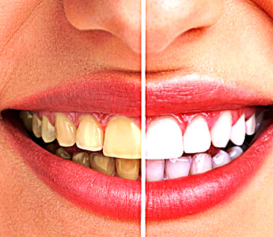how-to-improve-your-smile-and-get-confidence
