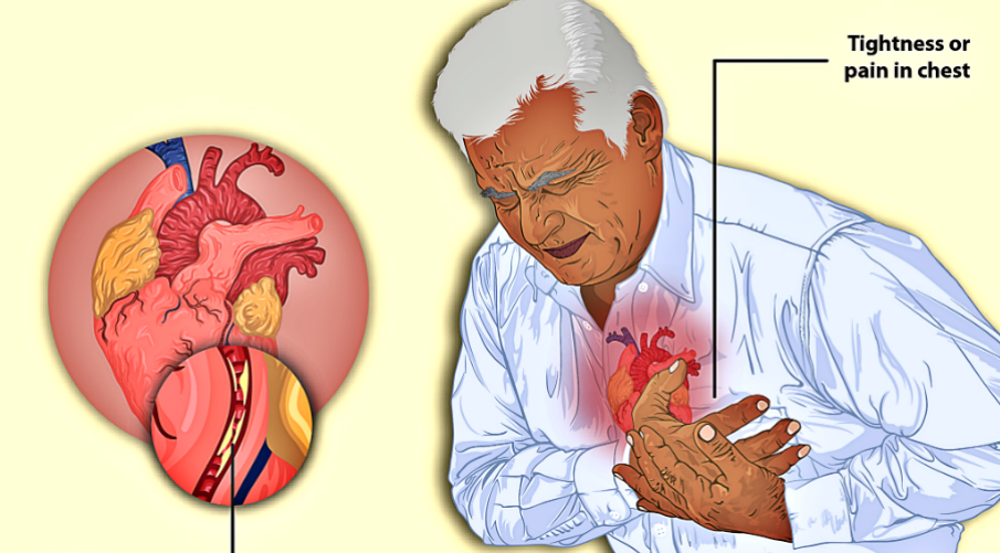 how-to-prevent-a-sudden-cardiac-arrest-in-the-workplace