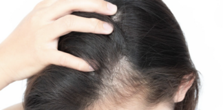 short-guide-to-hair-loss