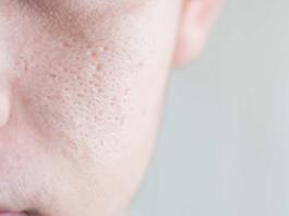 how-to-shrink-your-pores-naturally